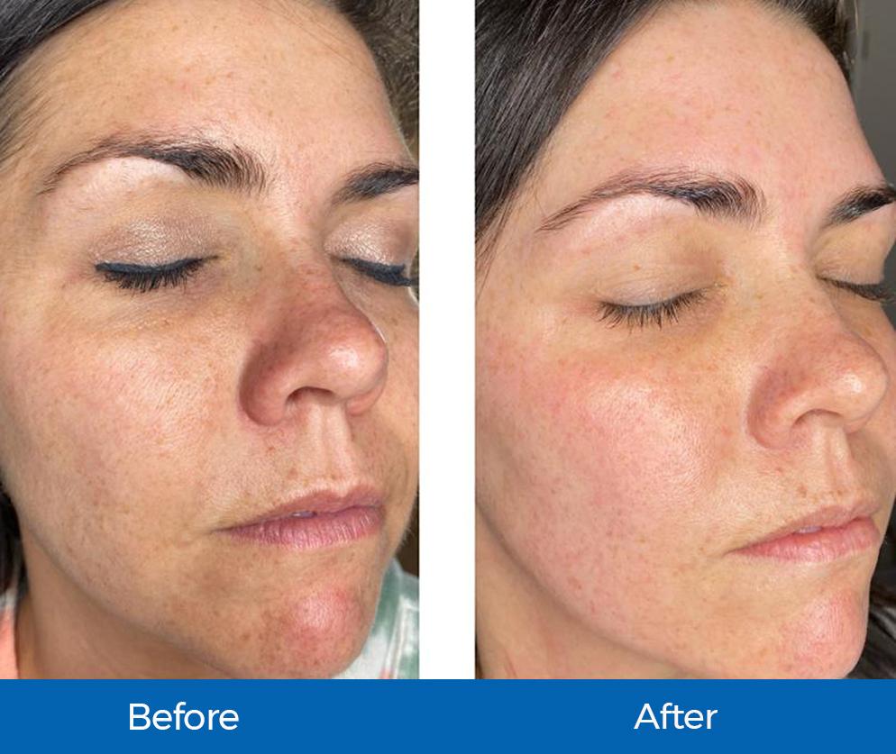 DC Linik Before-After SaltFacial