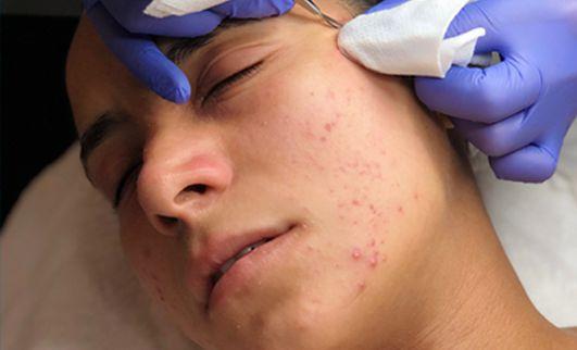 DCLINIK—_0000_control-acne-1